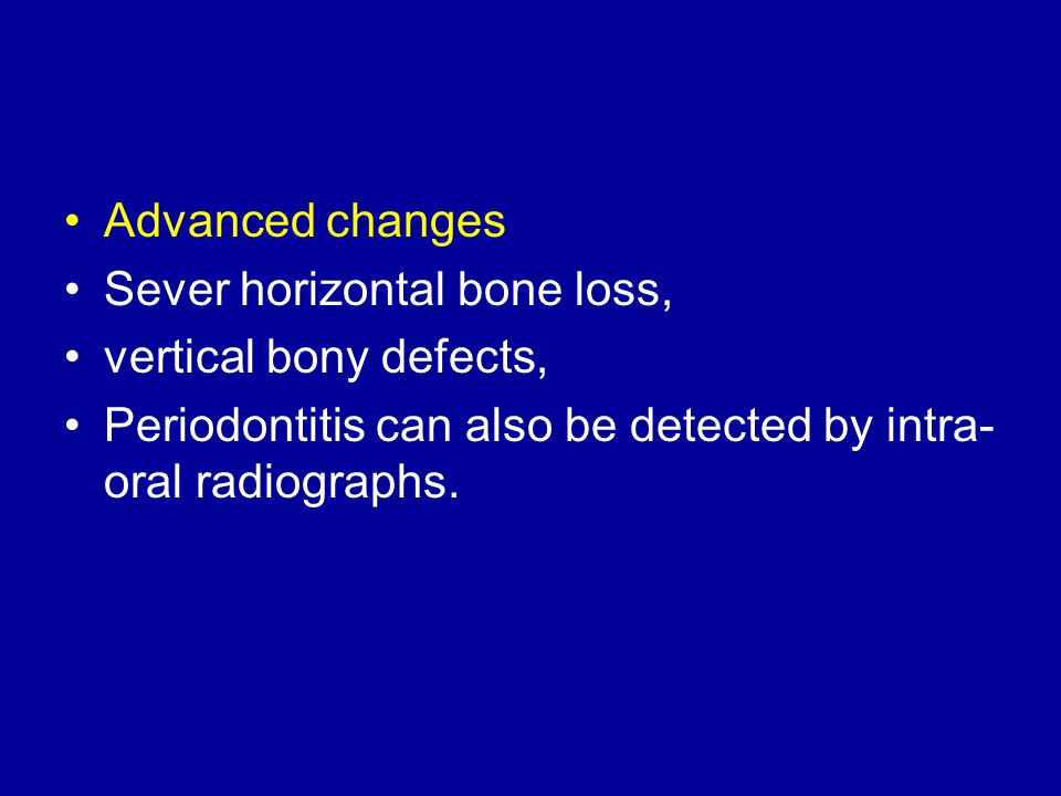 Advanced changes Sever horizontal bone loss, vertical bony defects, Periodontitis can also be detected by intra-oral radiographs.