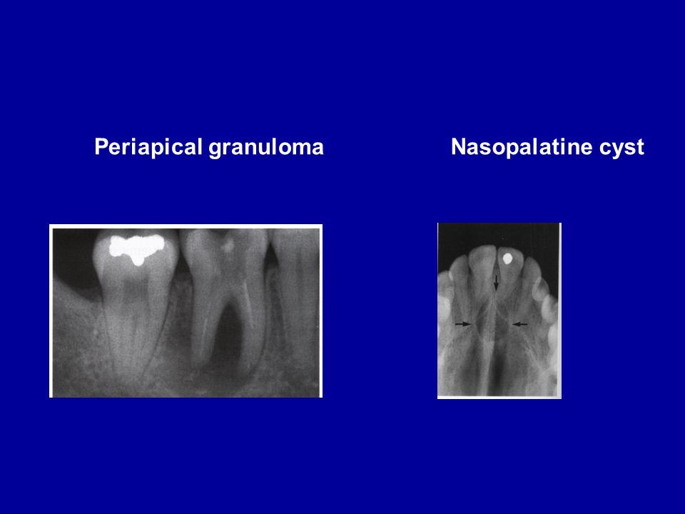 Periapical granuloma Nasopalatine cyst