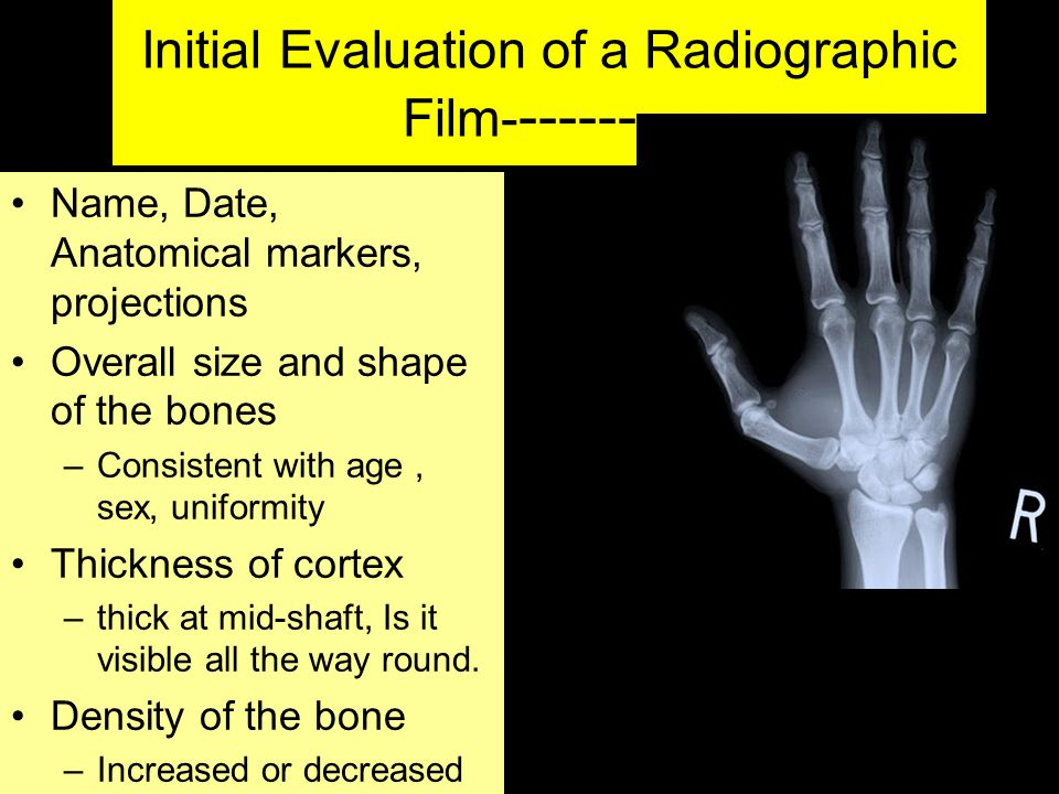 Initial Evaluation of a Radiographic Film----------