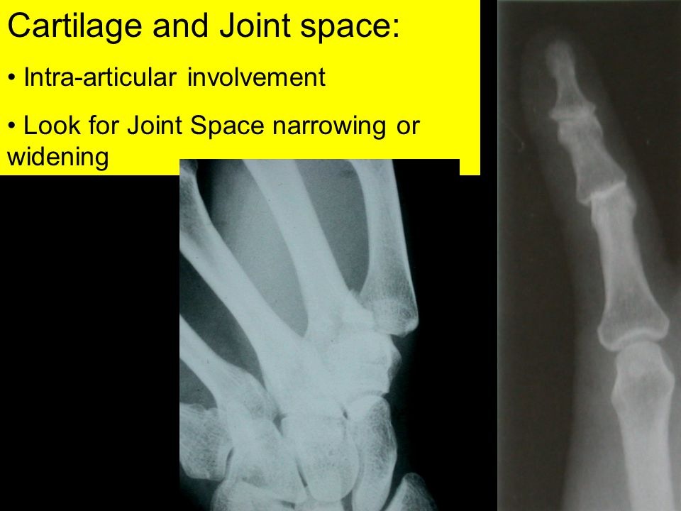 Cartilage and Joint space: