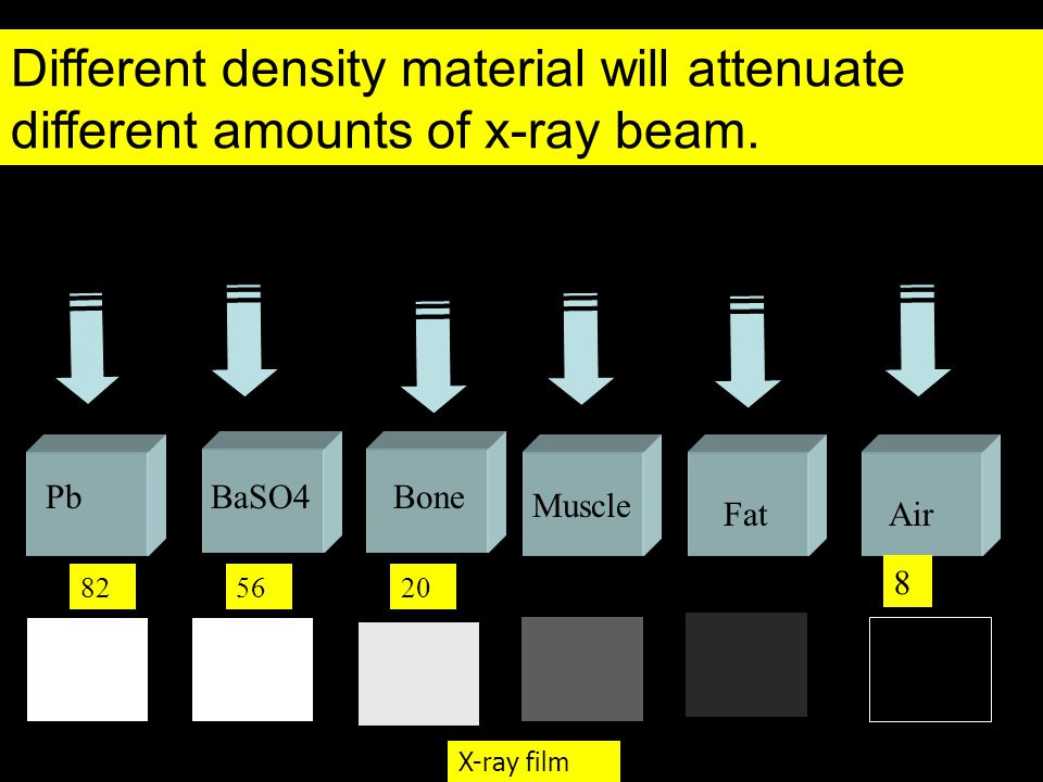 Different density material will attenuate different amounts of x-ray beam.