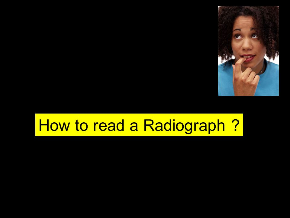 How to read a Radiograph