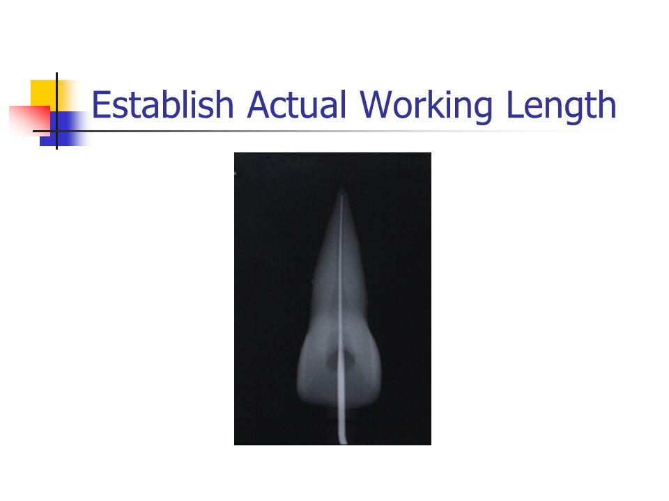 Establish Actual Working Length
