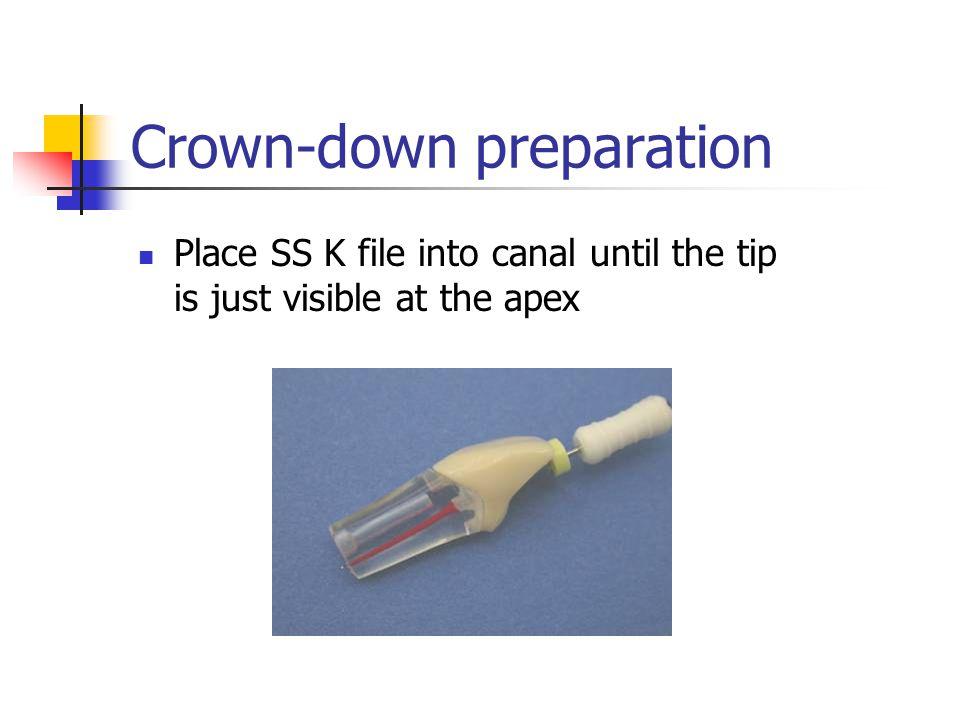 Crown-down preparation