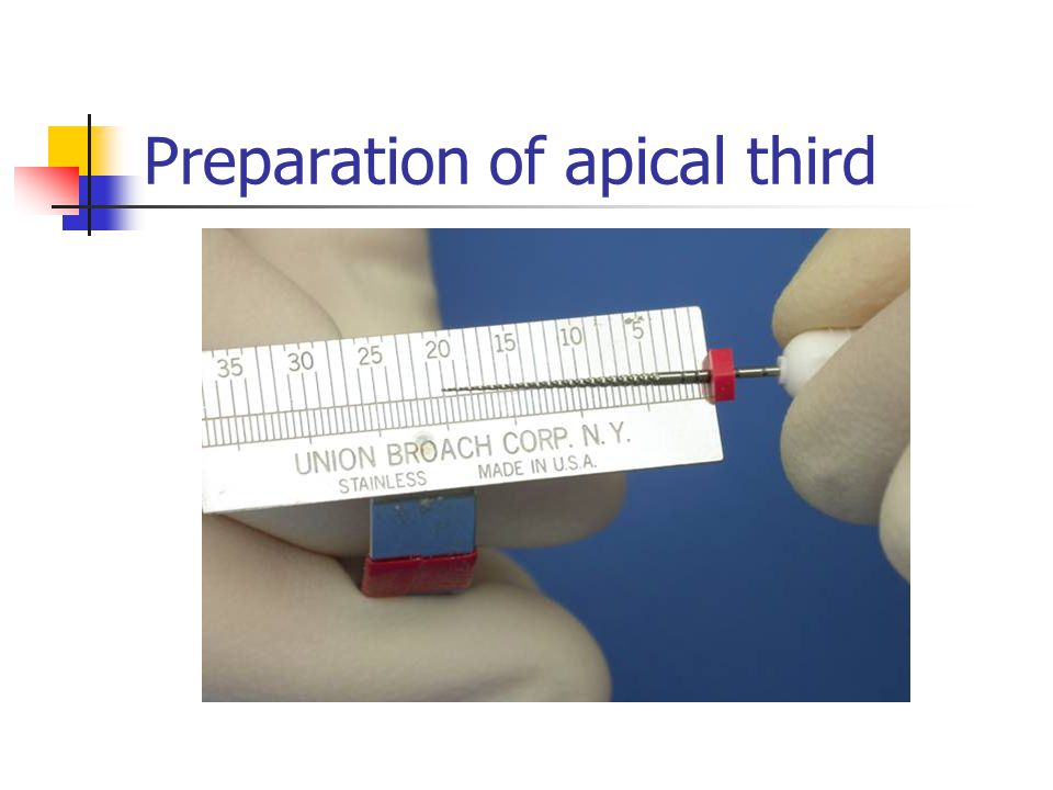 Preparation of apical third