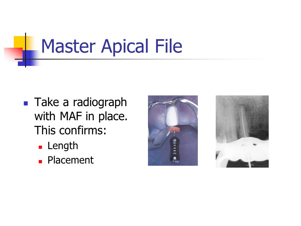 Master Apical File Take a radiograph with MAF in place. This confirms:
