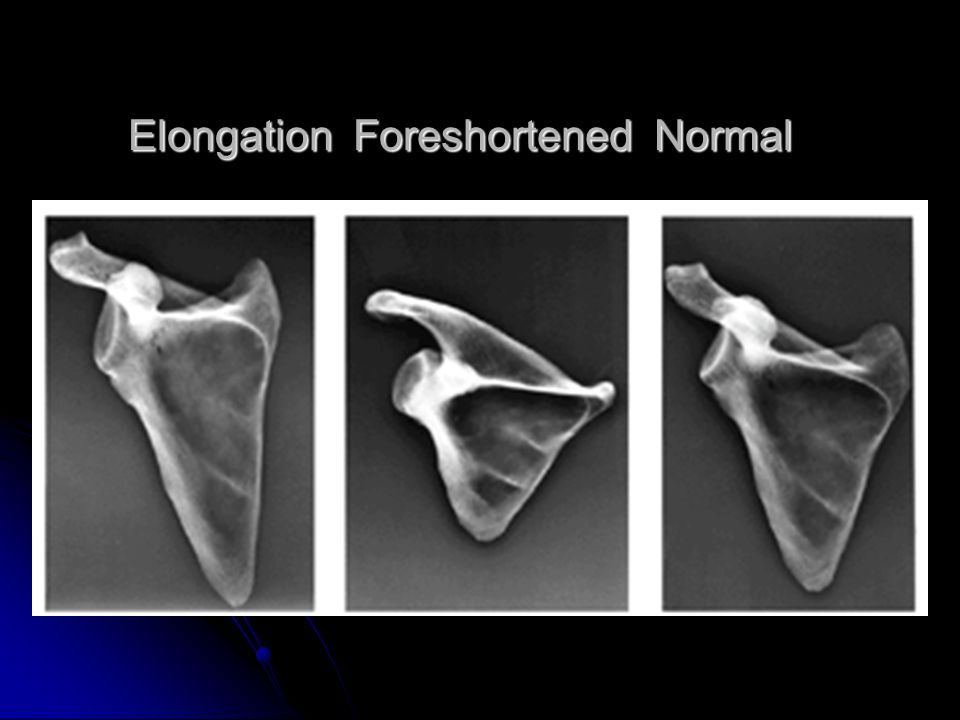 Elongation Foreshortened Normal