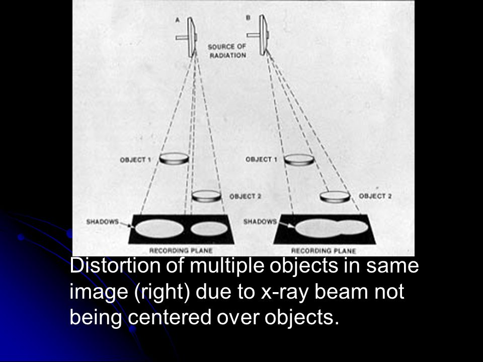 Distortion of multiple objects in same image (right) due to x-ray beam not being centered over objects.