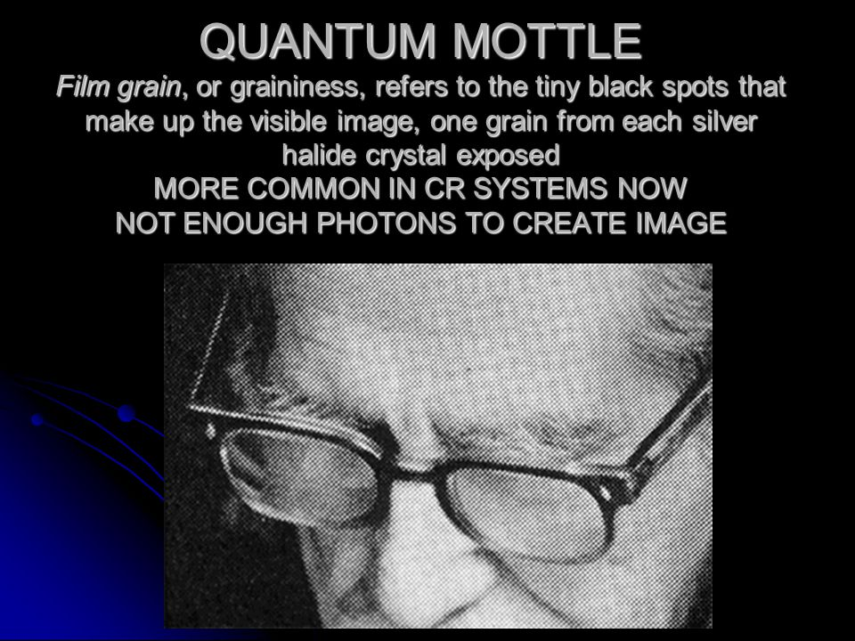 QUANTUM MOTTLE Film grain, or graininess, refers to the tiny black spots that make up the visible image, one grain from each silver halide crystal exposed MORE COMMON IN CR SYSTEMS NOW NOT ENOUGH PHOTONS TO CREATE IMAGE