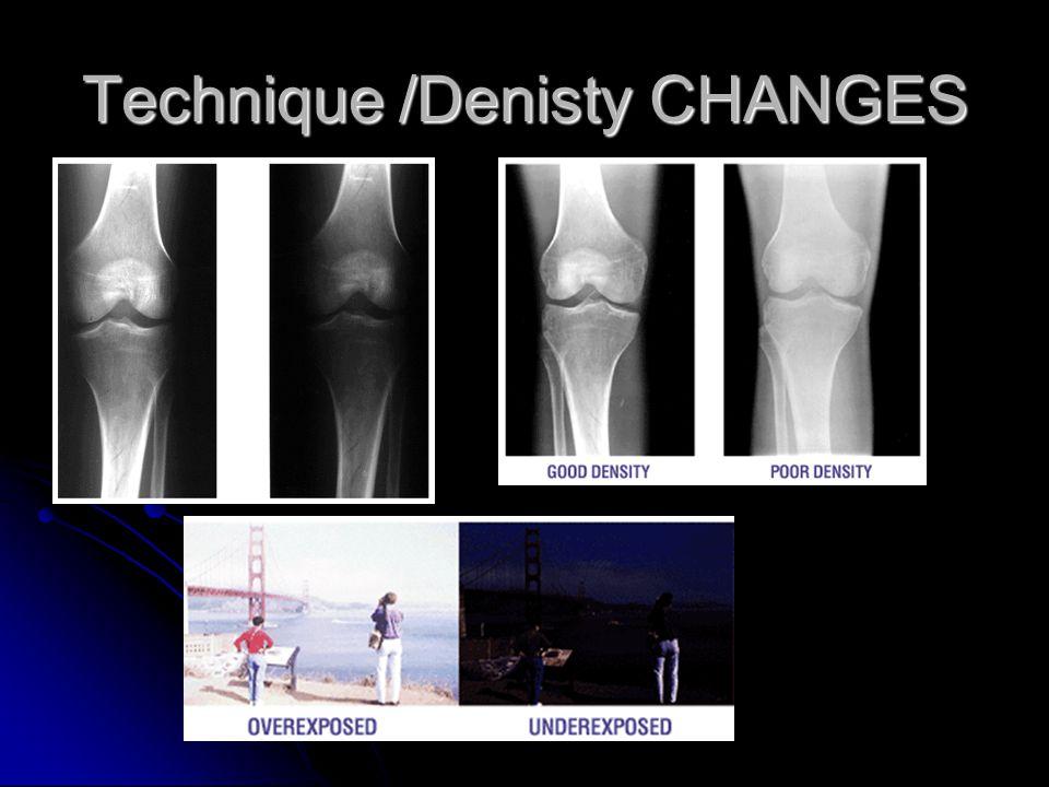 Technique /Denisty CHANGES