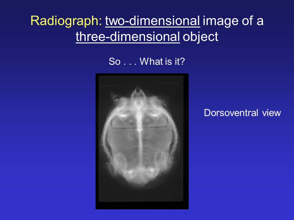Radiograph: two-dimensional image of a three-dimensional object
