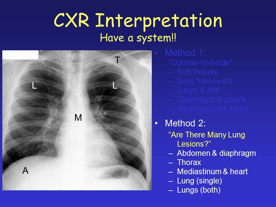 CXR Interpretation Have a system!!