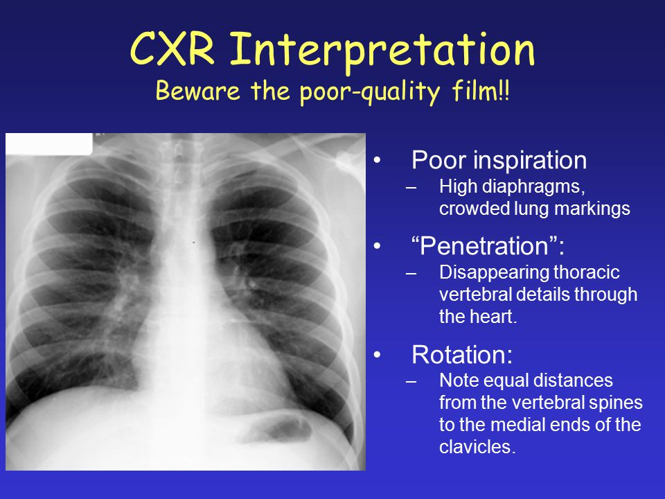CXR Interpretation Beware the poor-quality film!!