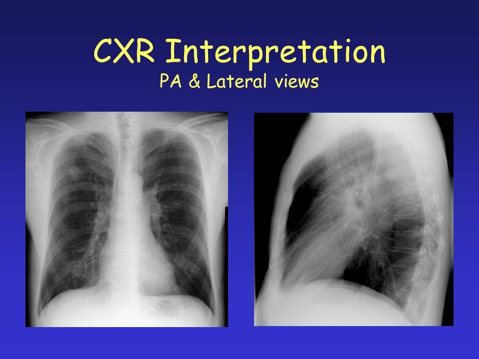 CXR Interpretation PA & Lateral views
