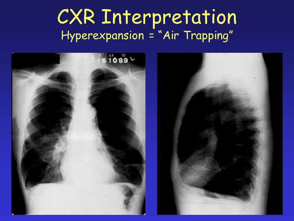 CXR Interpretation Hyperexpansion = Air Trapping