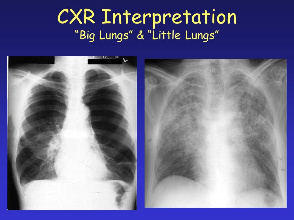 CXR Interpretation Big Lungs & Little Lungs