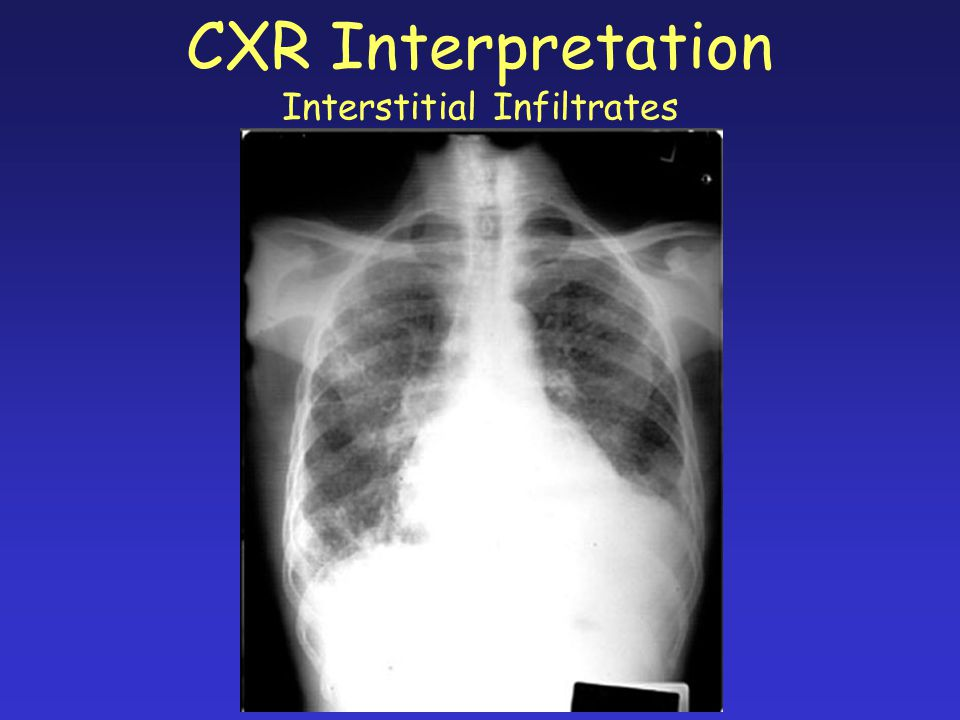 CXR Interpretation Interstitial Infiltrates