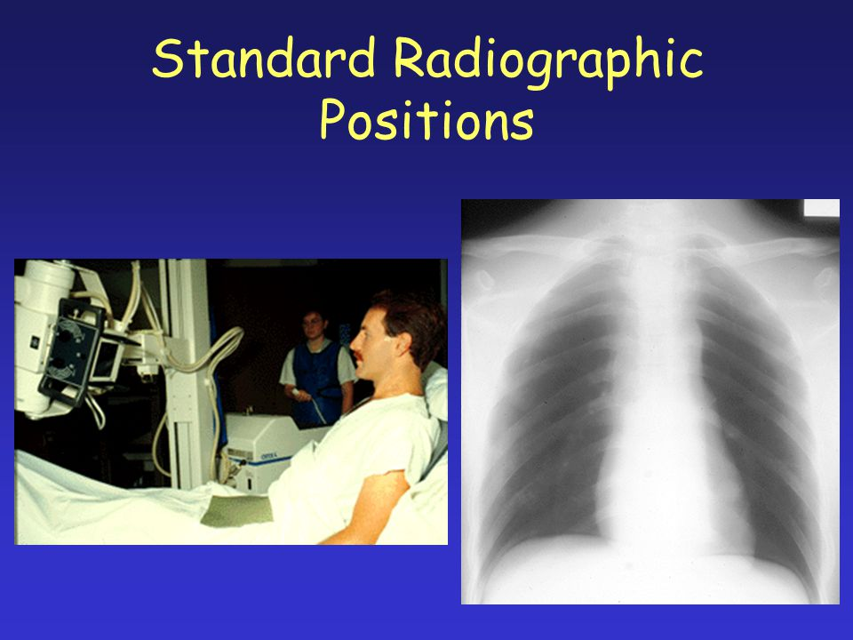 Standard Radiographic Positions