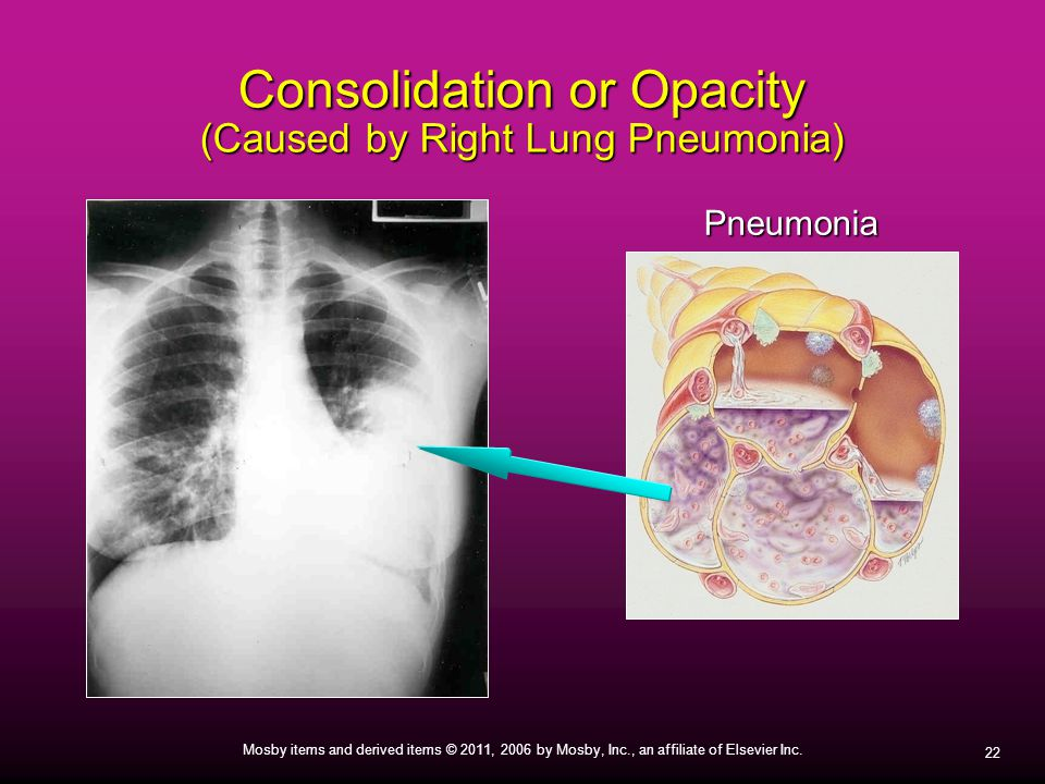 Consolidation or Opacity (Caused by Right Lung Pneumonia)