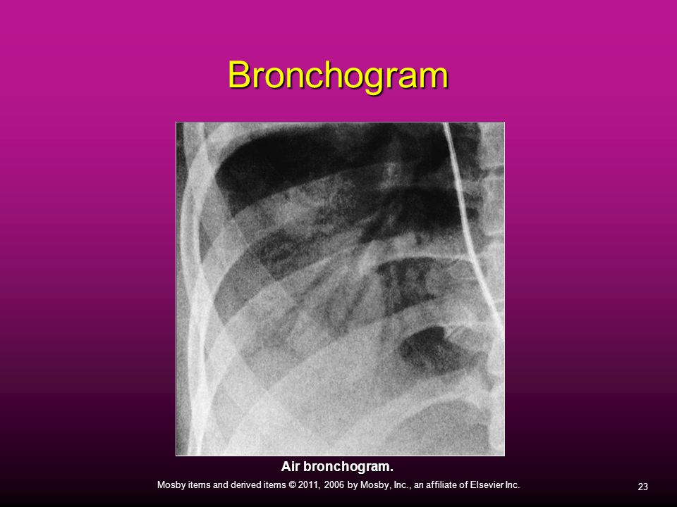 Bronchogram Air bronchogram.