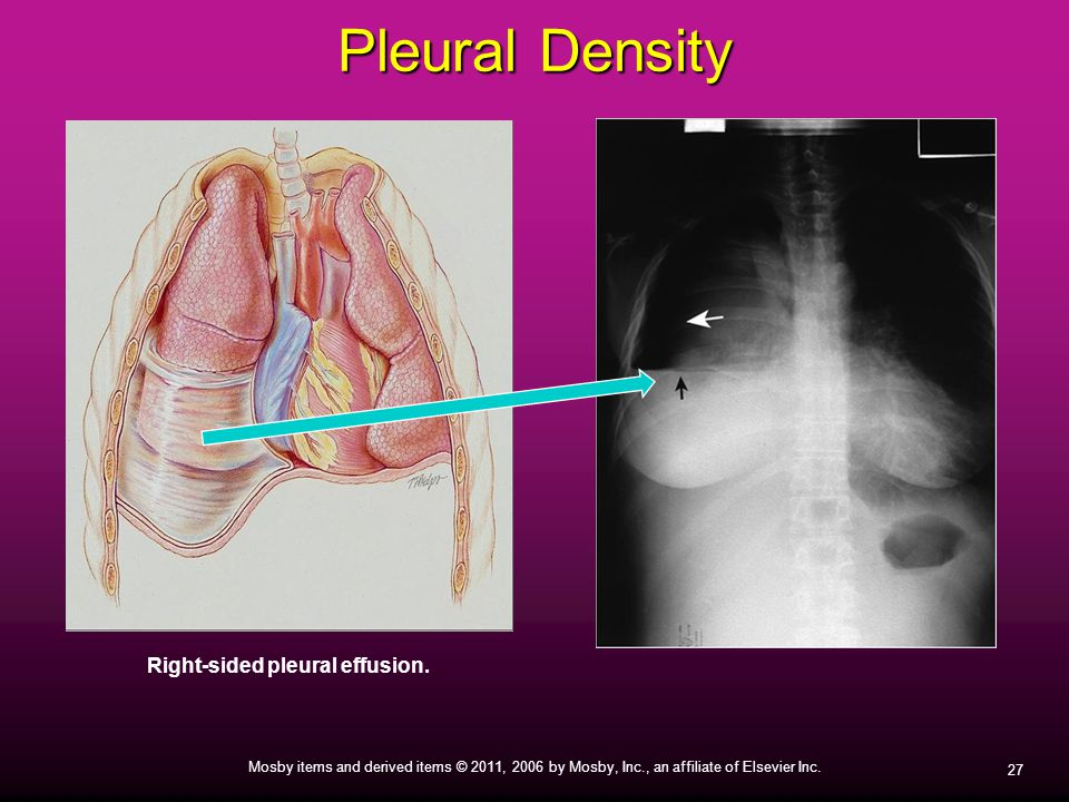 Right-sided pleural effusion.