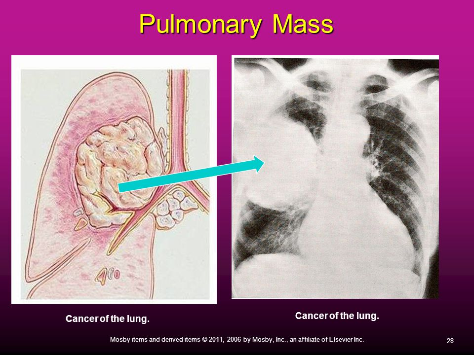 Pulmonary Mass Cancer of the lung. Cancer of the lung.