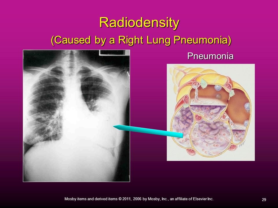 Radiodensity (Caused by a Right Lung Pneumonia)