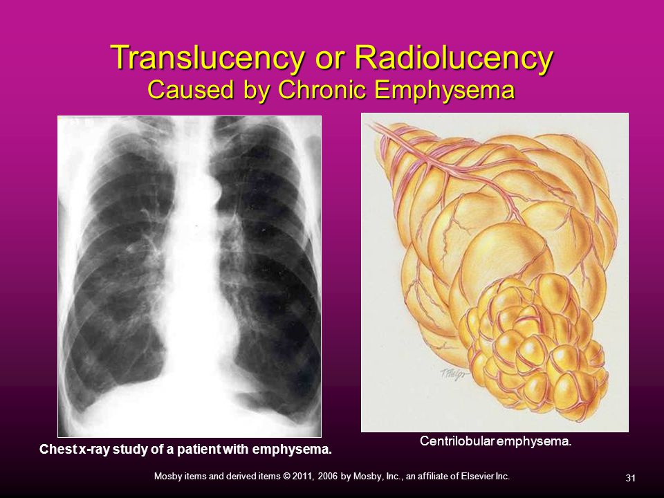 Translucency or Radiolucency Caused by Chronic Emphysema