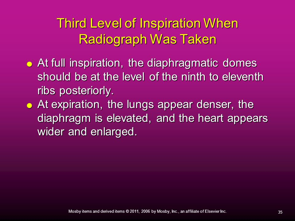 Third Level of Inspiration When Radiograph Was Taken