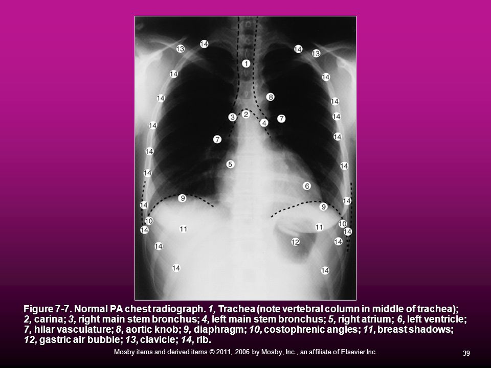 Figure 7-7. Normal PA chest radiograph