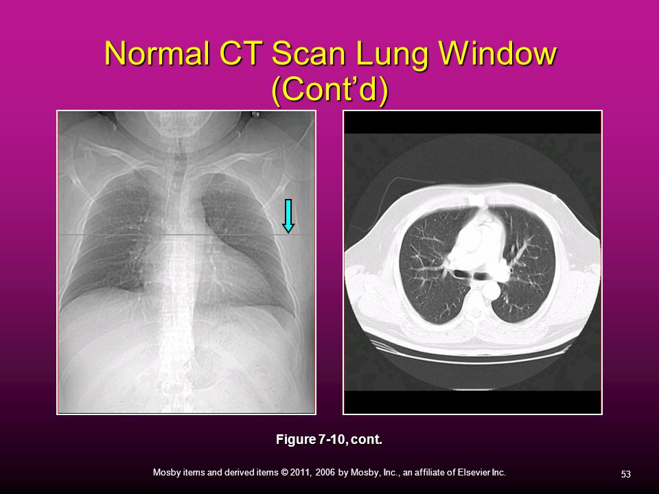 Normal CT Scan Lung Window (Cont'd)