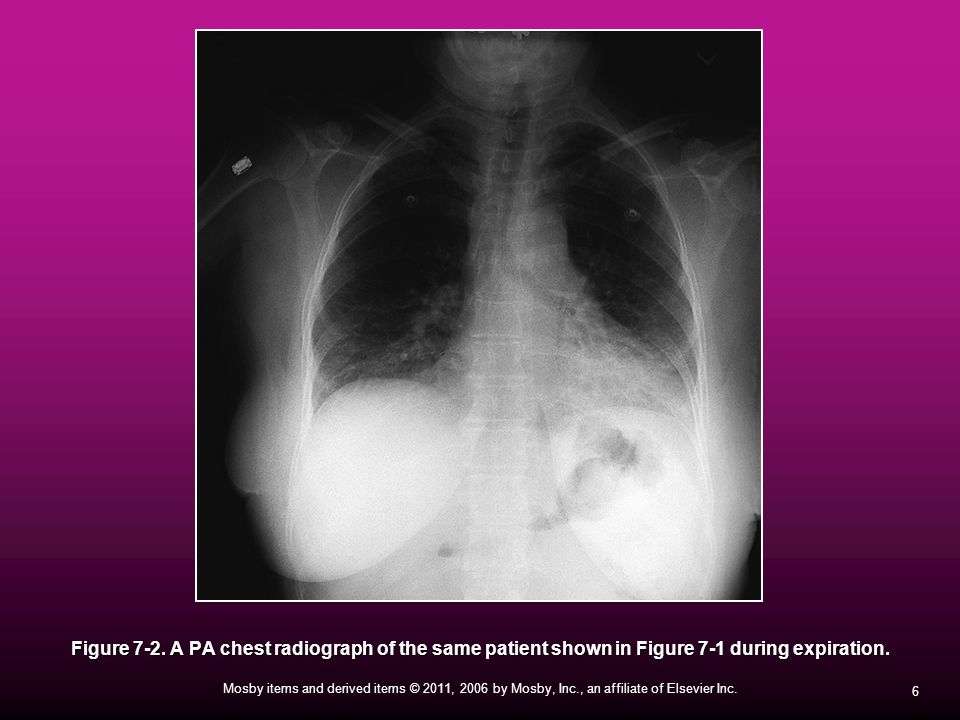 Figure 7-2. A PA chest radiograph of the same patient shown in Figure 7-1 during expiration.