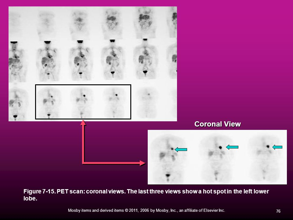 Coronal View Figure 7-15. PET scan: coronal views.