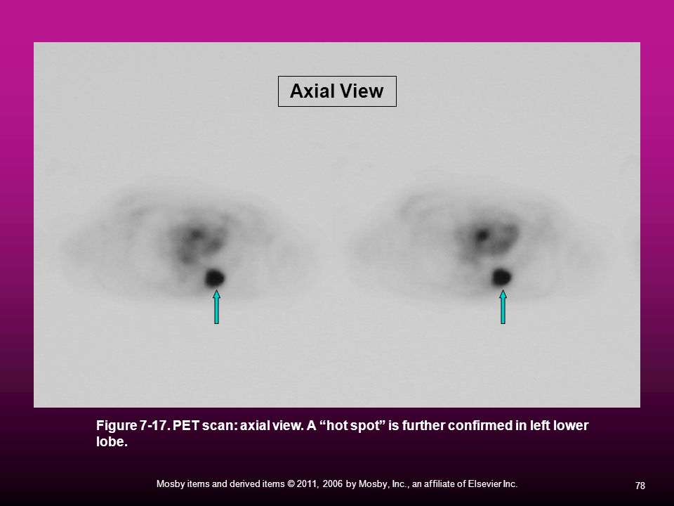Axial View Figure 7-17. PET scan: axial view. A hot spot is further confirmed in left lower lobe.