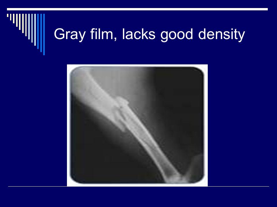 Gray film, lacks good density