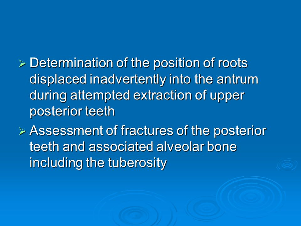 Determination of the position of roots displaced inadvertently into the antrum during attempted extraction of upper posterior teeth
