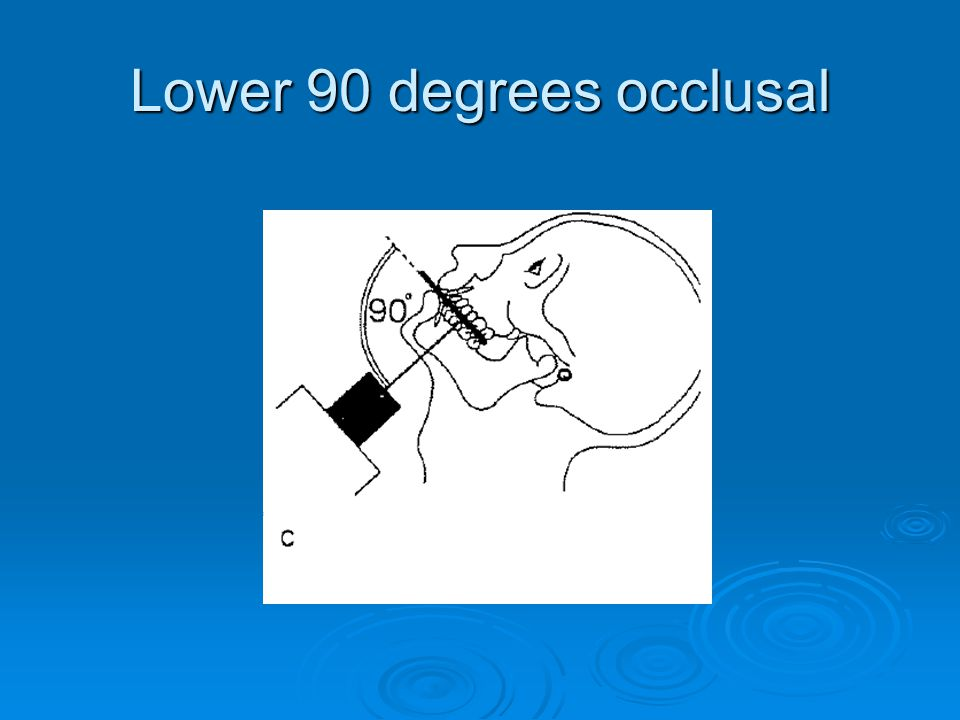 Lower 90 degrees occlusal