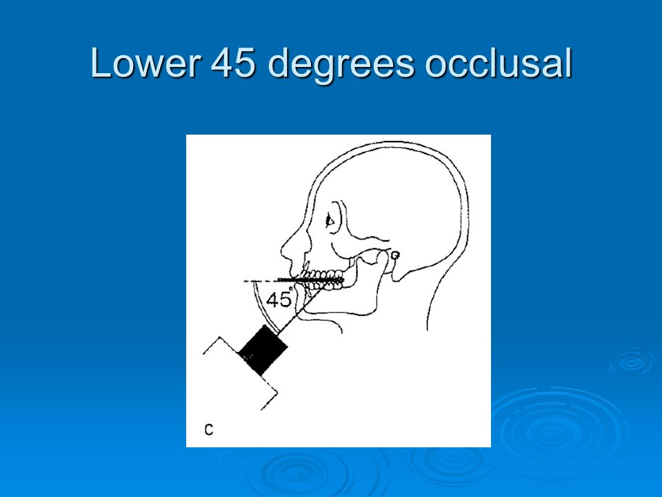 Lower 45 degrees occlusal