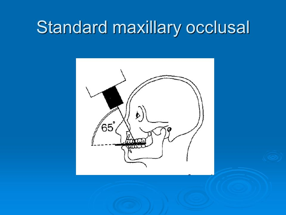 Standard maxillary occlusal