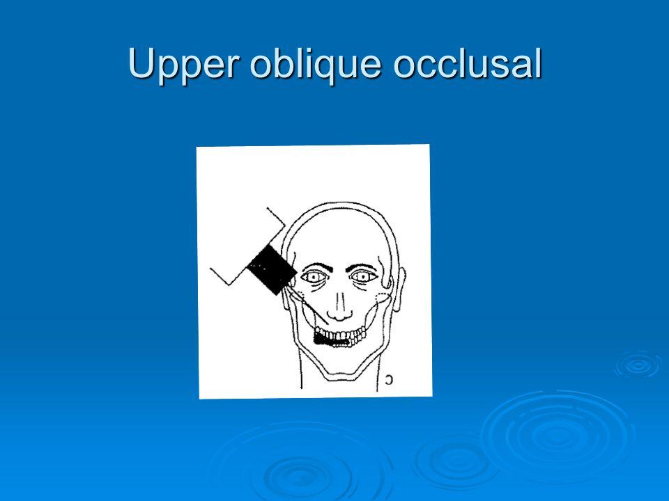 Upper oblique occlusal