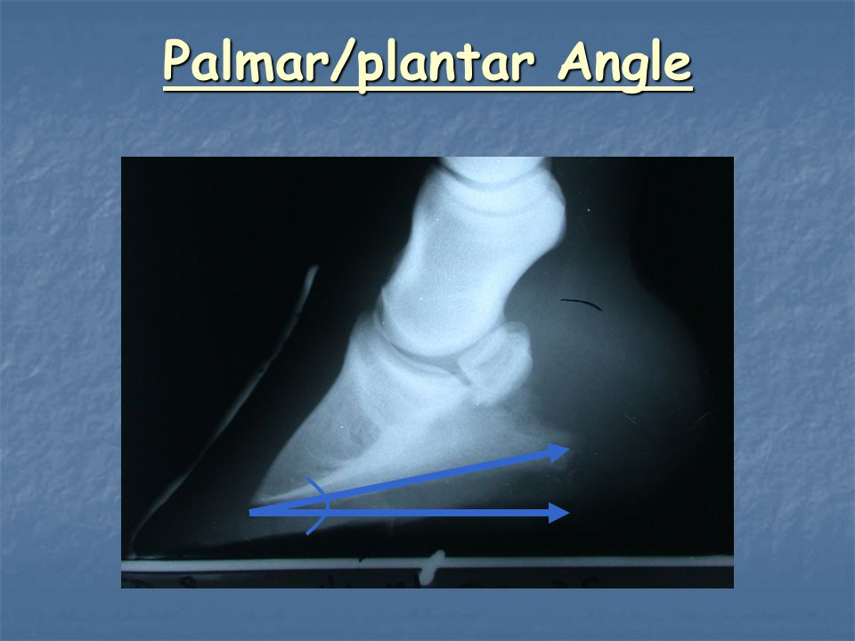 Palmar/plantar Angle Need to measure angle (or find it).