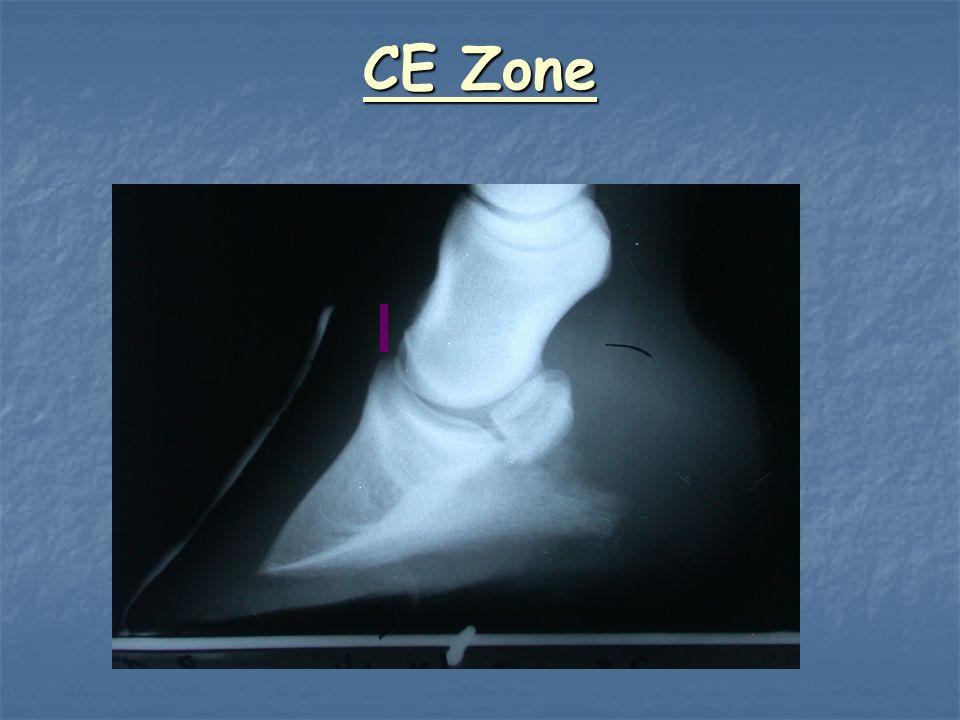 CE Zone Check to make sure this is correct… what does it mean if this is greater than 1cm….