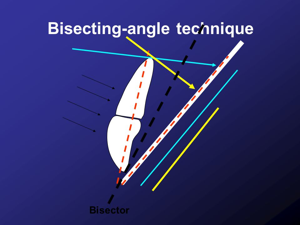 Bisecting-angle technique
