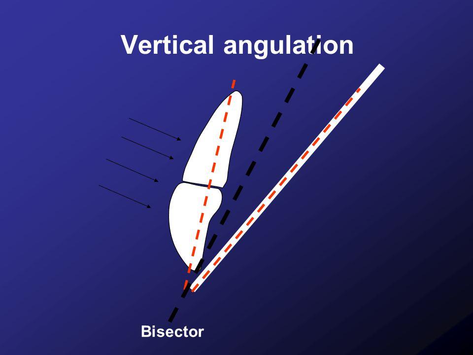 Vertical angulation Bisector 17
