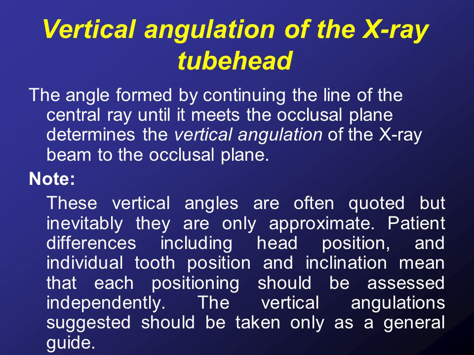Vertical angulation of the X-ray tubehead
