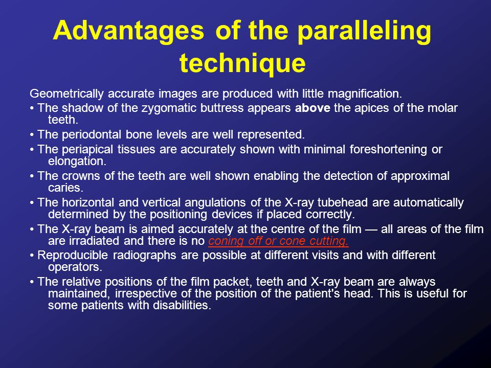 Advantages of the paralleling technique