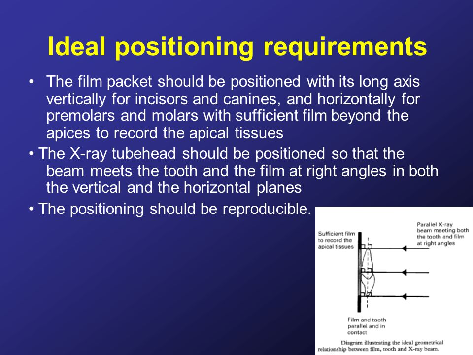 Ideal positioning requirements