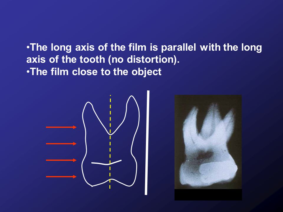 The long axis of the film is parallel with the long axis of the tooth (no distortion).