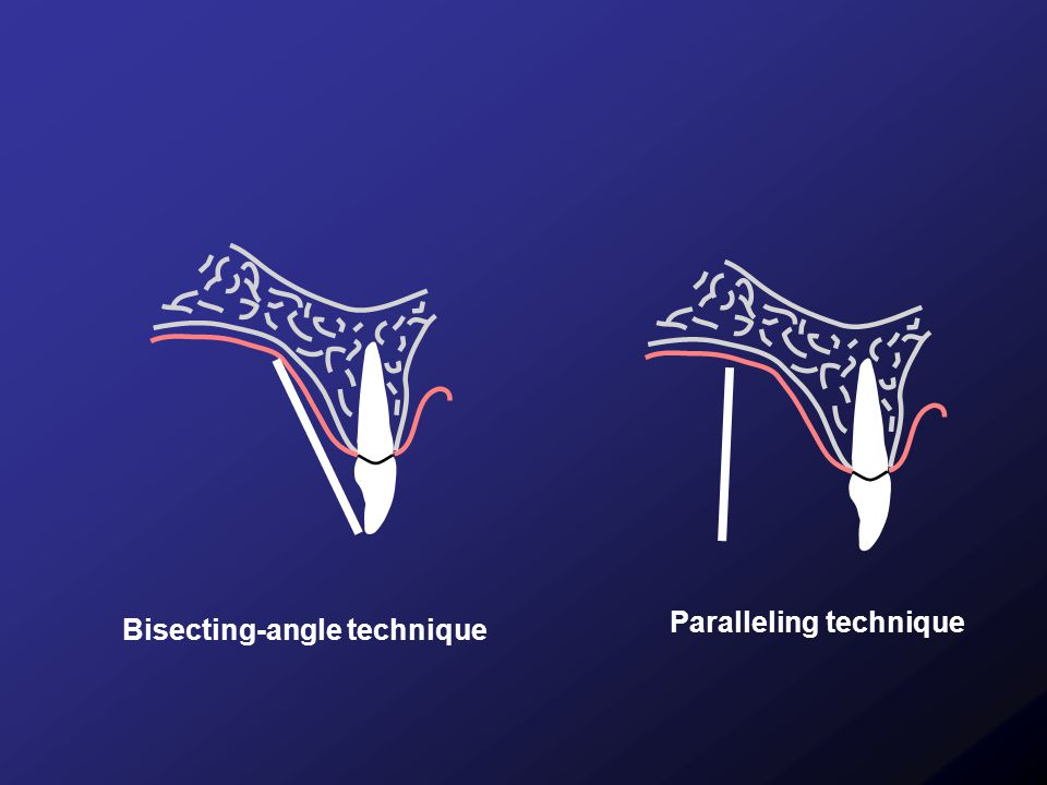 Paralleling technique Bisecting-angle technique