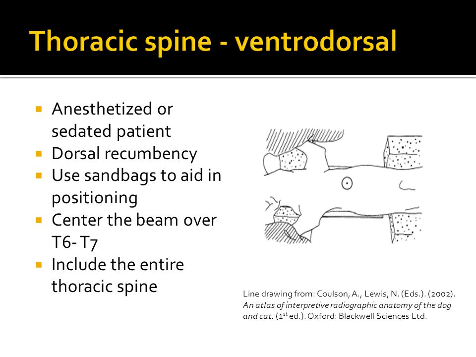 Thoracic spine - ventrodorsal